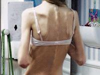 背骨、肩甲骨が浮いて見える女性の後ろ姿