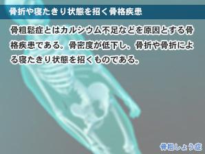 骨折や寝たきり状態を招く骨格疾患