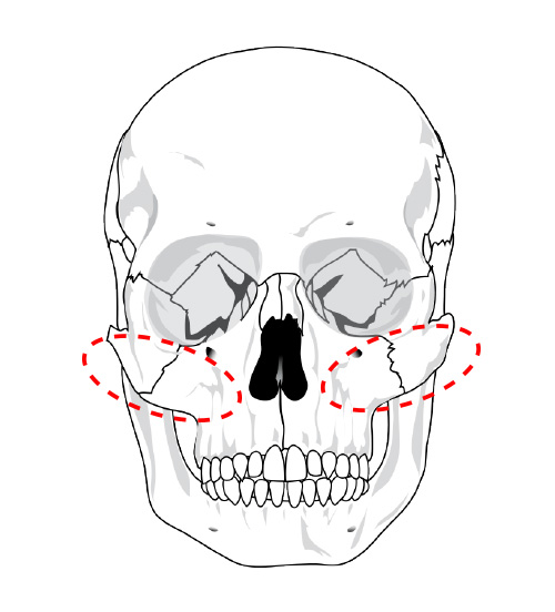 押される骨は頬骨
